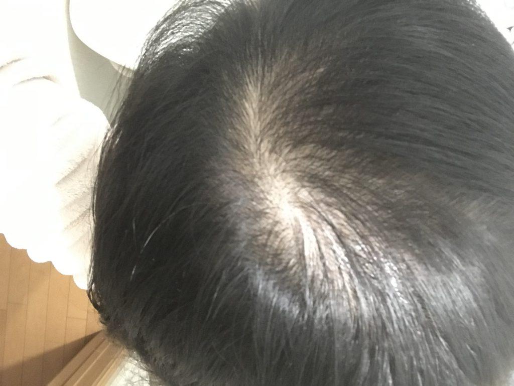 マイナチュレ6ヶ月後の髪